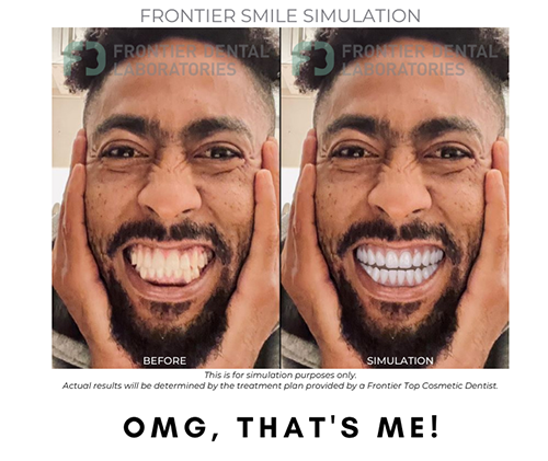 photo of a before and after as a resut of a frontier smile simulation