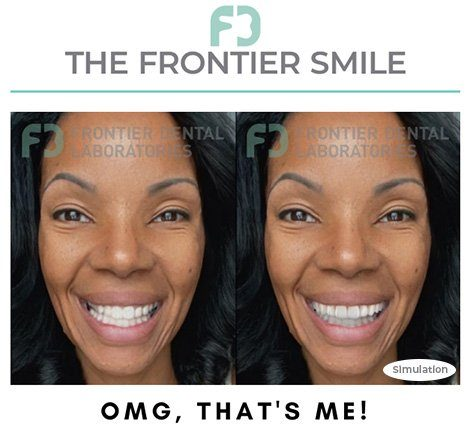 frontier smile simulation